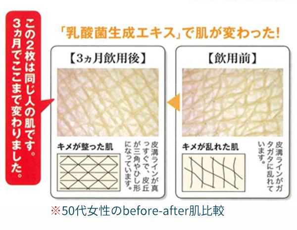 乳酸菌生成エキスで肌が変わった!